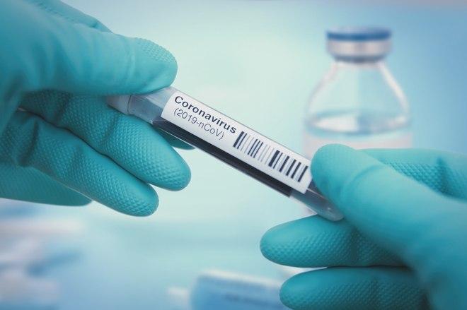 virus corona dan kematian